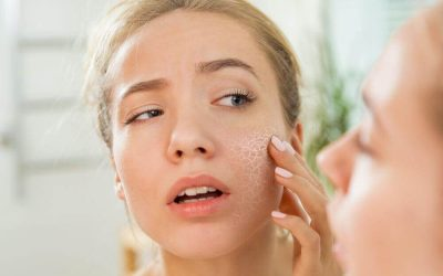 6 Amazing Vitamins for Dry Skin
